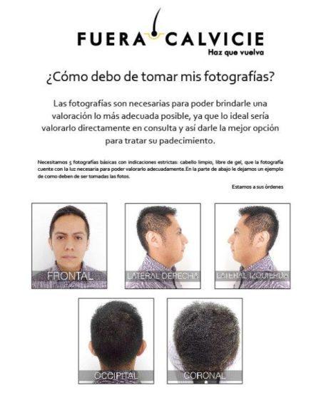 implante de bigote, injerto ceja, Implante cejas, injerto cabello costo, Implante Bigote, perdida de cabello, trasplante pelo, injerto capilar, implante de bigote, implante cejas df, implante de barba, injerto cabello, injerto de cabello, injertos de pelo, injertos de pelo, precio de injerto de cabello, perdida cabello, injerto de cabello costo, injerto cabello, implante cejas, injerto pelo, injerto pelo, injerto capilar precio, implante patilla, injerto capilar precio, implante de patilla df, injerto de pelo, injerto capilar precio, implante de bigote df, injertos cabello, injerto de pelo precio, injertos pelo, injertos capilares, implante bigote, Transplante de pelo, implante barba df, implante de cejas df, injerto de cabello, injertos capilares, implante de patilla, Implante barba, injerto de pelo precio, injerto de pelo, injerto de cabello costo, injertos capilares, implante barba, Implante patilla, injertos de cabello, implante de cejas, injerto patilla, perdida pelo, Perder pelo, injerto capilar, injerto pelo precio, implante de barba, precio injerto cabello, precio de injerto de cabello, injerto barba, injerto capilar, injerto ceja, injerto bello patilla, injerto de patilla, injerto bello barba, injerto bello bigote, injerto de barba, implante capilar, injerto de ceja, injerto bello, implante de bello, injerto de pelo, injerto de pelo en pecho, injerto barba, injerto patilla, implante de pelo, injerto pelo pecho, injerto de bigote, injerto bigote, injerto bello pecho, injerto pelo, injerto bello ceja