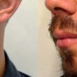 injerto-de-barba-fueracalvicie