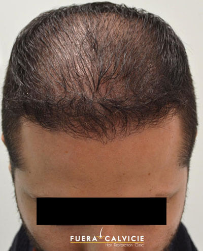 After-Injerto Cabello Hombre