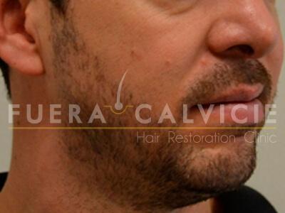 Before- Injerto de barba con Técnica FUE Fuera Calvicie