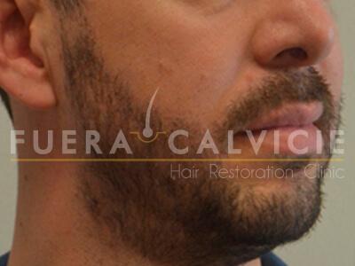 After- Injerto de barba con Técnica FUE Fuera Calvicie