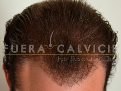 Before- Injerto de pelo con Técnica FUE hombre