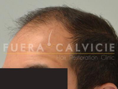 Before-Técnica FUE antes y después