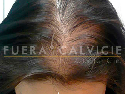 After-Tratamiento Capilar Mujer Mesoterapia